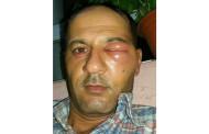 تنبيه للسوريين: إياك أن تقول كلمة ( كزبرة ) في تركيا فستتعرض للضرب كهذا الرجل!