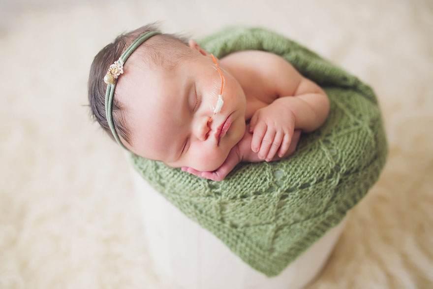 صور طفلة مريضة بالسرطان