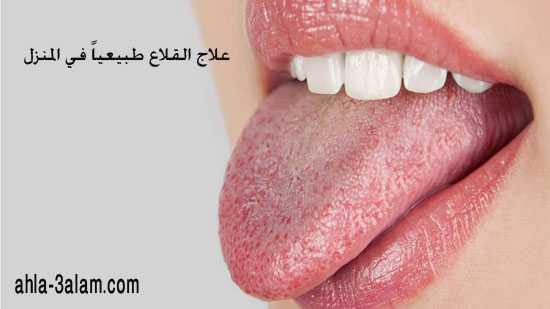 علاج الحمو وجفاف الفم طبيعياً