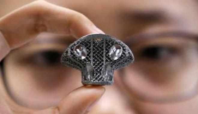 نجاح زرع فقرة اصطناعية 3D في العمود الفقري لأول مرة في الصين