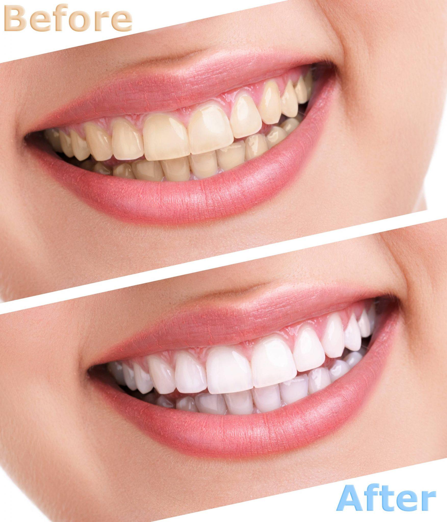 التخلص من جير الأسنان