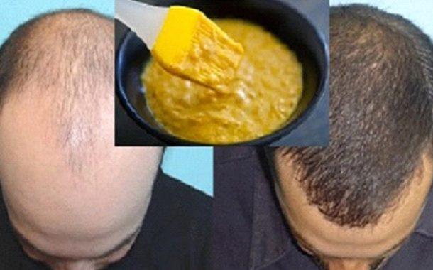 خلطة الموز و البيرة لعلاج الصلع و تحفيز نمو الشعر و منع تساقطه مجدداً